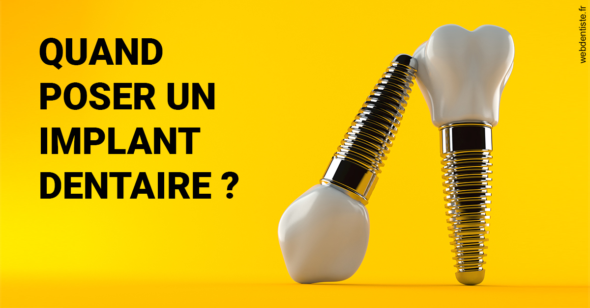 https://dr-julien-thomas.chirurgiens-dentistes.fr/Les implants 2